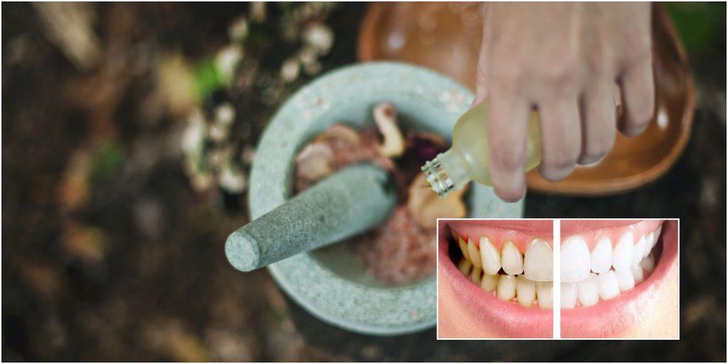 elimina la placa dental y el sarro con aceite de coco para absorber las impurezas