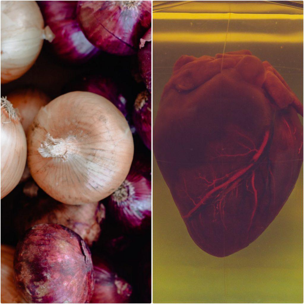 Los Remedios caseros con cebolla para el corazón evitan los infartos del miocardio