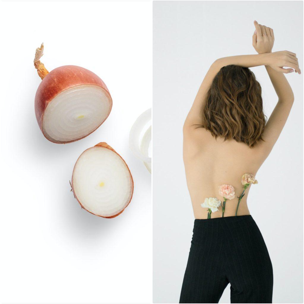 La cebolla evita la infección en los granos, los cortes, por eso es tan eficientes en los remediosb para la piel