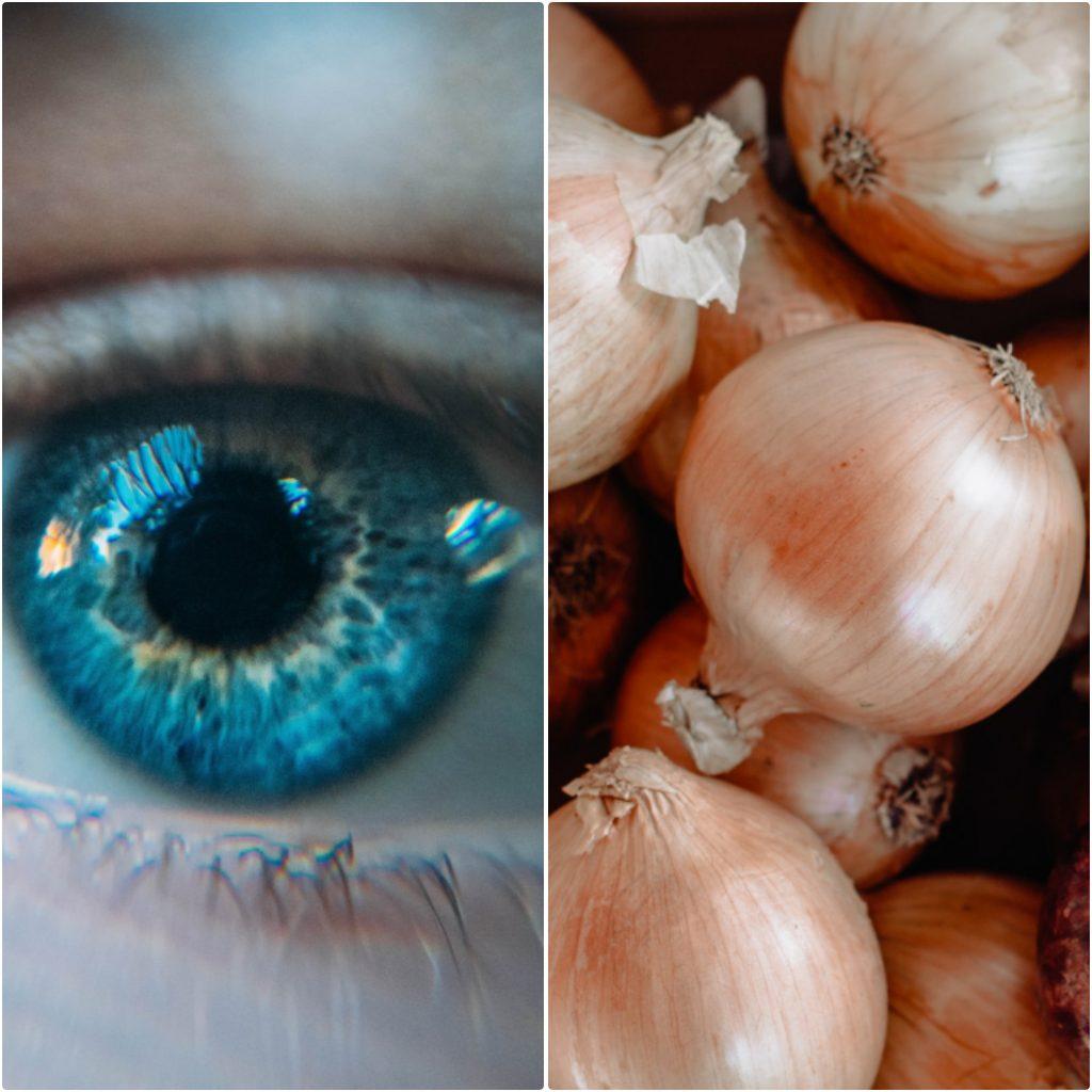 La catarata es una enfermedad en los ojos que prestan mucha personas