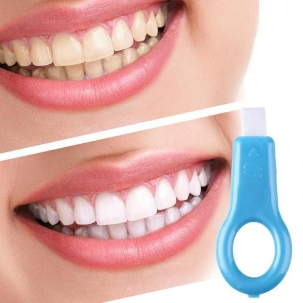 Este tratamiento te dará un antes y un después en tus dientes