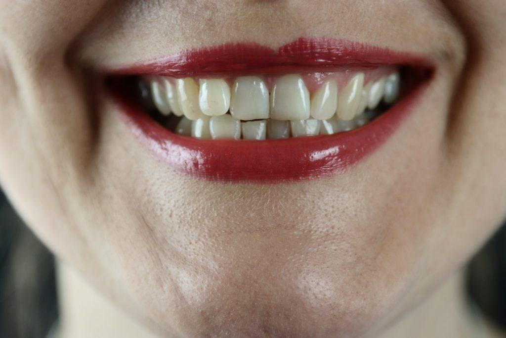 elimina la placa dental y el sarro para que tus dientes luzcan hermosos
