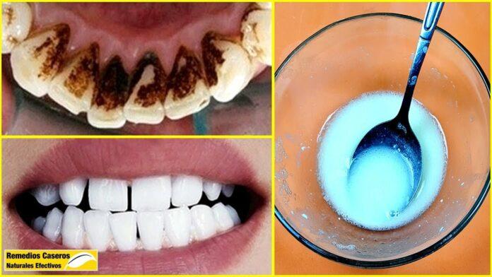 elimina-la-placa+dental-y-el-sarro-solo-con-esta-mezcla