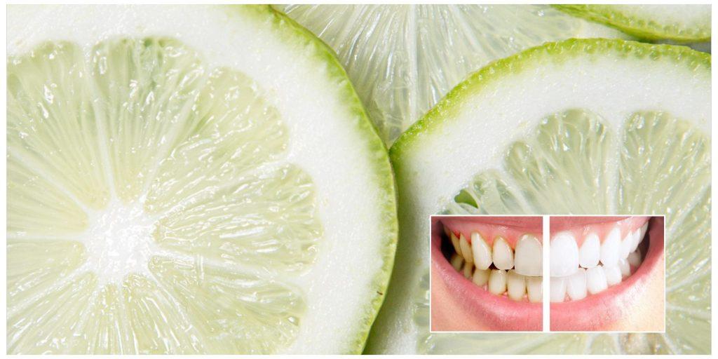 elimina la placa dental y el sarro con el limón y quita las bacterias de tus dientes