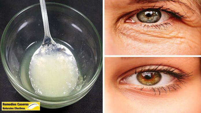 remedios caseros para eliminar las arrugas debajo de los ojos