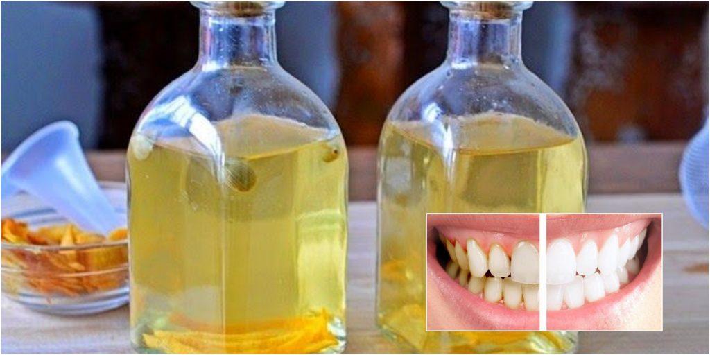 El vinagre es un excelente blanqueador y elimina la placa dental y el sarro