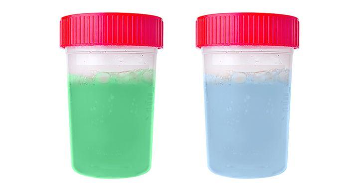 Dos frascos de orina con coloraciones azul y verde.