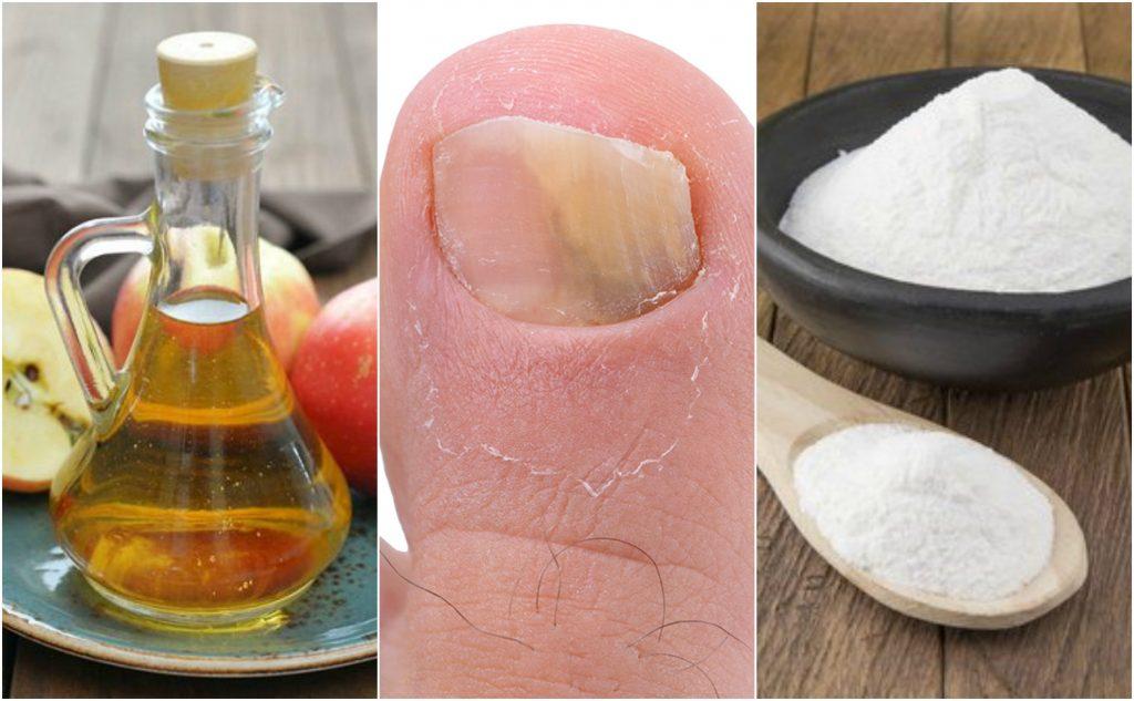 Collage de fotos de uña con hongos, frasco de vinagre y recipiente con sal