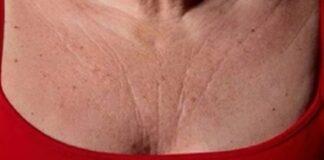 tonificar el cuello