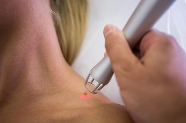 el cáncer de piel produce alteraciones en la coloración de la piel
