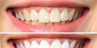 blanquear dientes con limon y sal