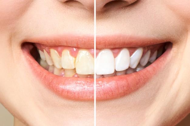 chica que usa enjuague bucal para tener los dientes blancos