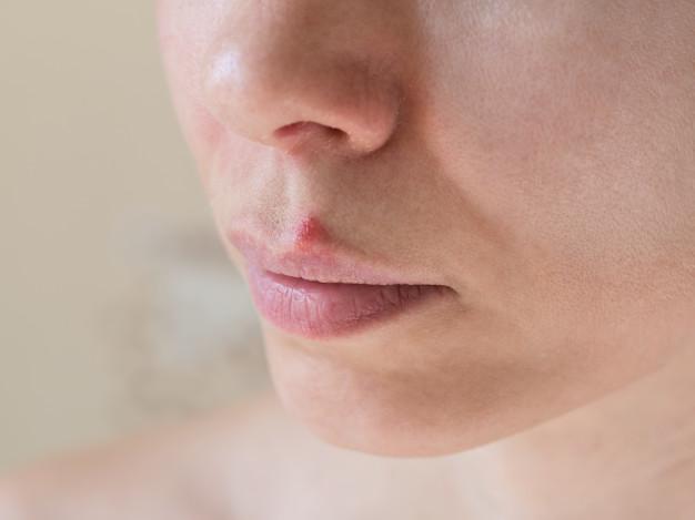 chica con herpes bucal sobre el labio