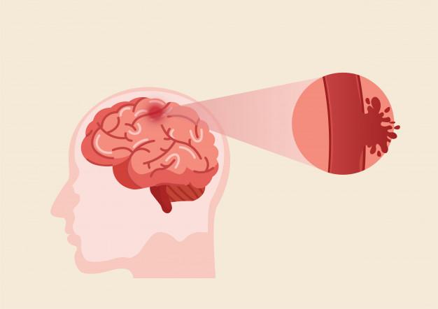 derrame cerebral causado por ruptura de un vaso sanguíneo