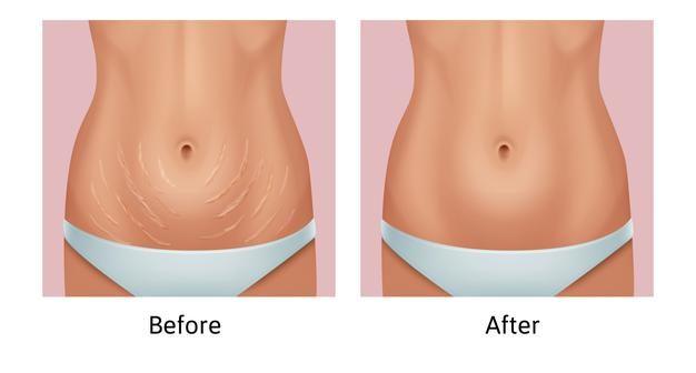 Eliminar el exceso de grasa del abdomen, mujer antes y después