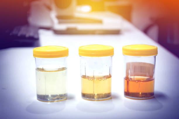 tres frascos de muestras de orina, con coloraciones y tonalidades distintas.