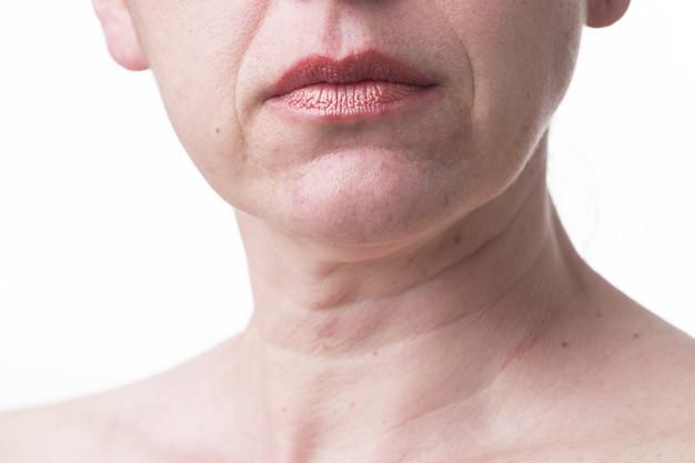 mujer con arrugas en el cuello