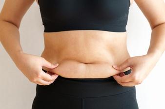 el vientre caído puede ser eliminado con cirugía plástica