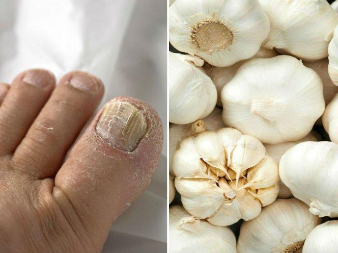 Collage de imágenes de un pie infectado de hongos al lado de varias cabezas de ajo.