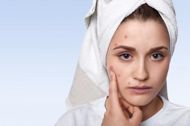 chica con acné que usa el pepino para cuidar la piel