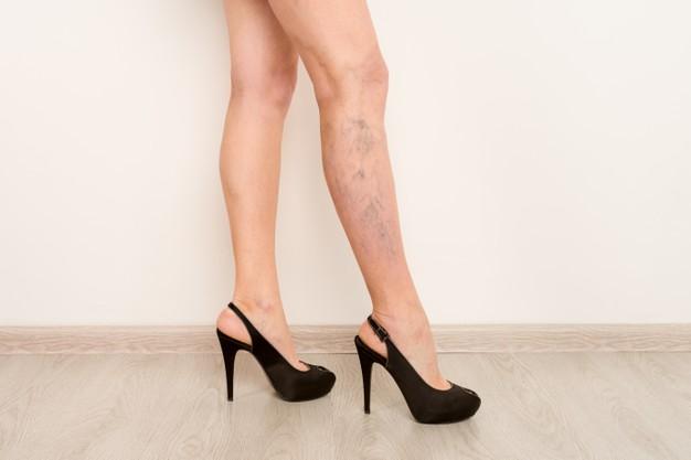 los tacones hacen que tengas varices en los pies